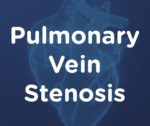 Pulmonary Vein Stenosis (PVS) Requires Ongoing Intervention And Maintenance